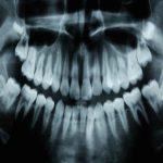 Çürük Dişlerin İyileşmesini Sağlayan İlaç Geliştirildi