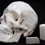 Eggshell-based surgical material for skull injuries
