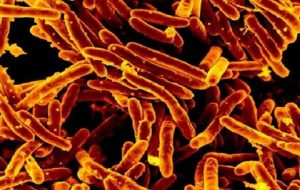 New treatment for tuberculosis: disease-causing bacteria will be starved