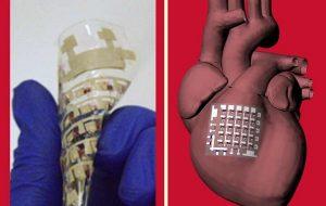Implantable