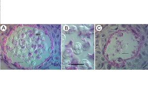 Doç Dr Gökmen Zafer ve Ekibi 4 Yeni Parazit Türü Keşfetti