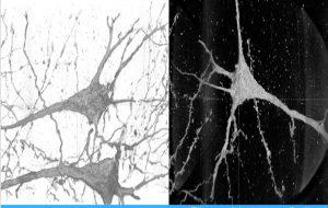 Powerful X-Rays Reveal