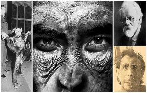 Afrikalı Kadınların Rahminde İnsan-Şempanze Melezi Oluşturmaya Çalışan Bilim İnsanı