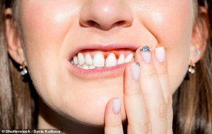 Diş Fırçalamak İçin Yeni Bir Sebep: Diş Eti Hastalıkları Alzheimer ve Demans Riskini Arttırıyor