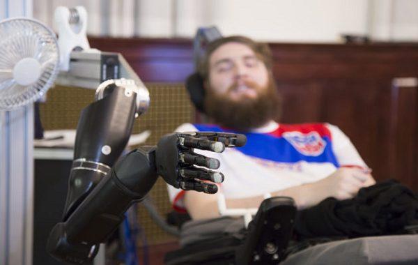"""Beyin Çipi Takılan Felçli Adam Robotik El ile """"Dokunma Hissi"""" Kazanan İlk İnsan Oldu"""