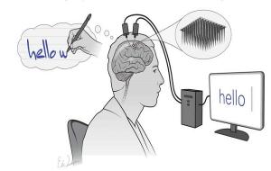 Beyne Yerleştirilen Mikroçip Düşünceleri Metne Dönüştürüyor