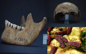 5000 Yıllık İskelette Veba Salgınına Sebep Olan Bakterinin En Eski Türü Bulundu