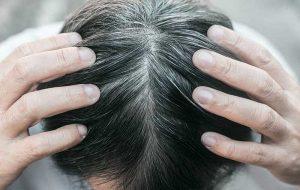 Bilim İnsanları Beyazlaşan Saçınızın Rengini Geri Kazanmak Sizin Elinizde Diyor