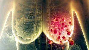 Bilim İnsanları Meme Kanseri Hücrelerinin Yüzde 95'ini Yok Eden İlaç Üretti