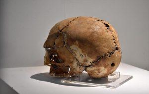 9.500 Yıl Önce Beyin