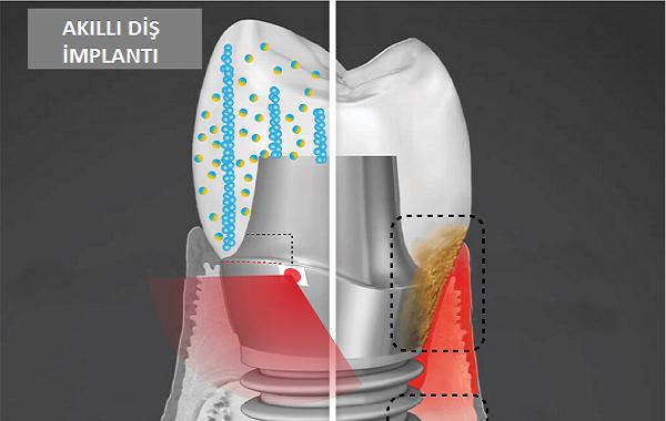 Diş İmplantı Elektrik Üreterek Enfekte Diş Etlerini İyileştirebilir
