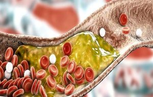 A Clever 'Gene Silencing' Injection Has Been Approved For Treating High Cholesterol
