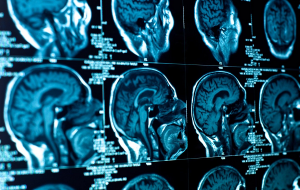 PCR Testinin Ardından Adam 9 Ay Süren Burundan Beyin Sıvısı Sızdırmaya Başladı