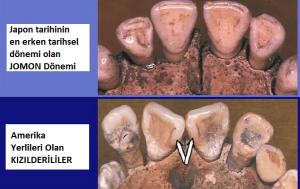 Kızılderililerin Kökeni Japon mu? 15.000 Yıllık Diş Analizi Gerçeği Ortaya Çıkardı